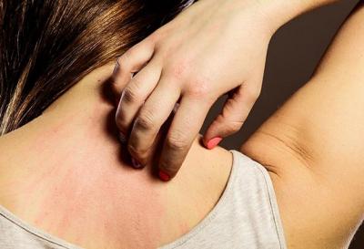 Ковид налицо: какие кожные заболевания вызывает коронавирус